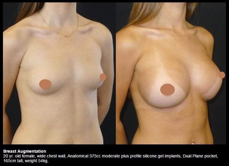 Breast augmentation surgery large areola